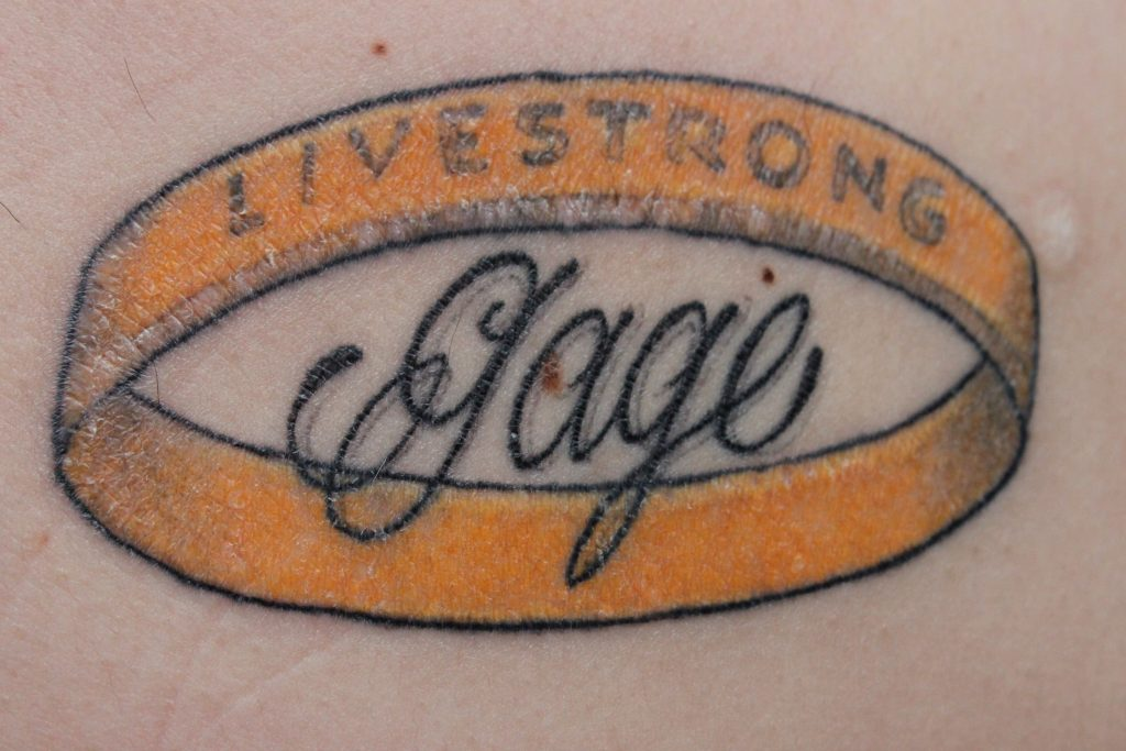 Jimmy's tattoo with Gage's signature in the middle, surrounded by a yellow LIVESTRONG band