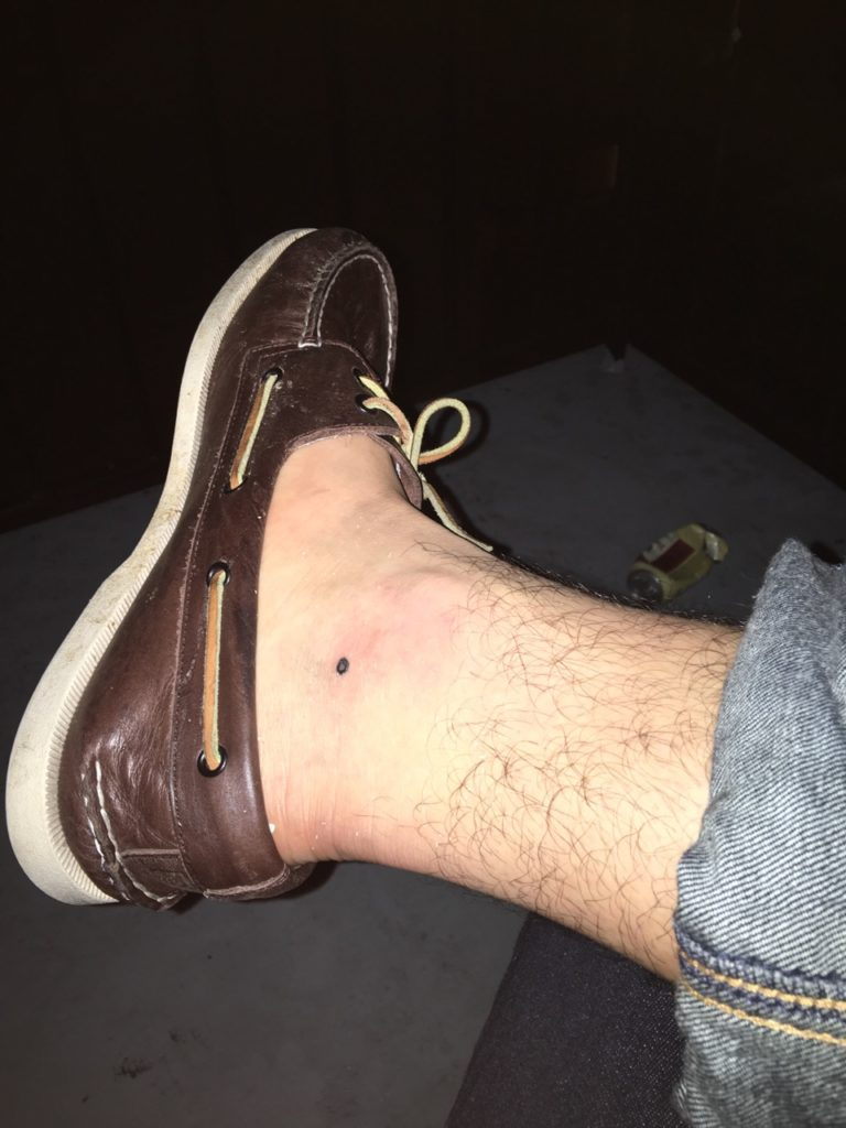 Tommy's right leg with a small black dot just below and to the left of his ankle bone. He's wearing rolled up jeans and topsiders without socks